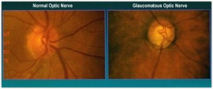 Glaucoma Treatment image