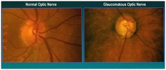 Normal Optic Nerve vs Glaucomatous Optic Nerve